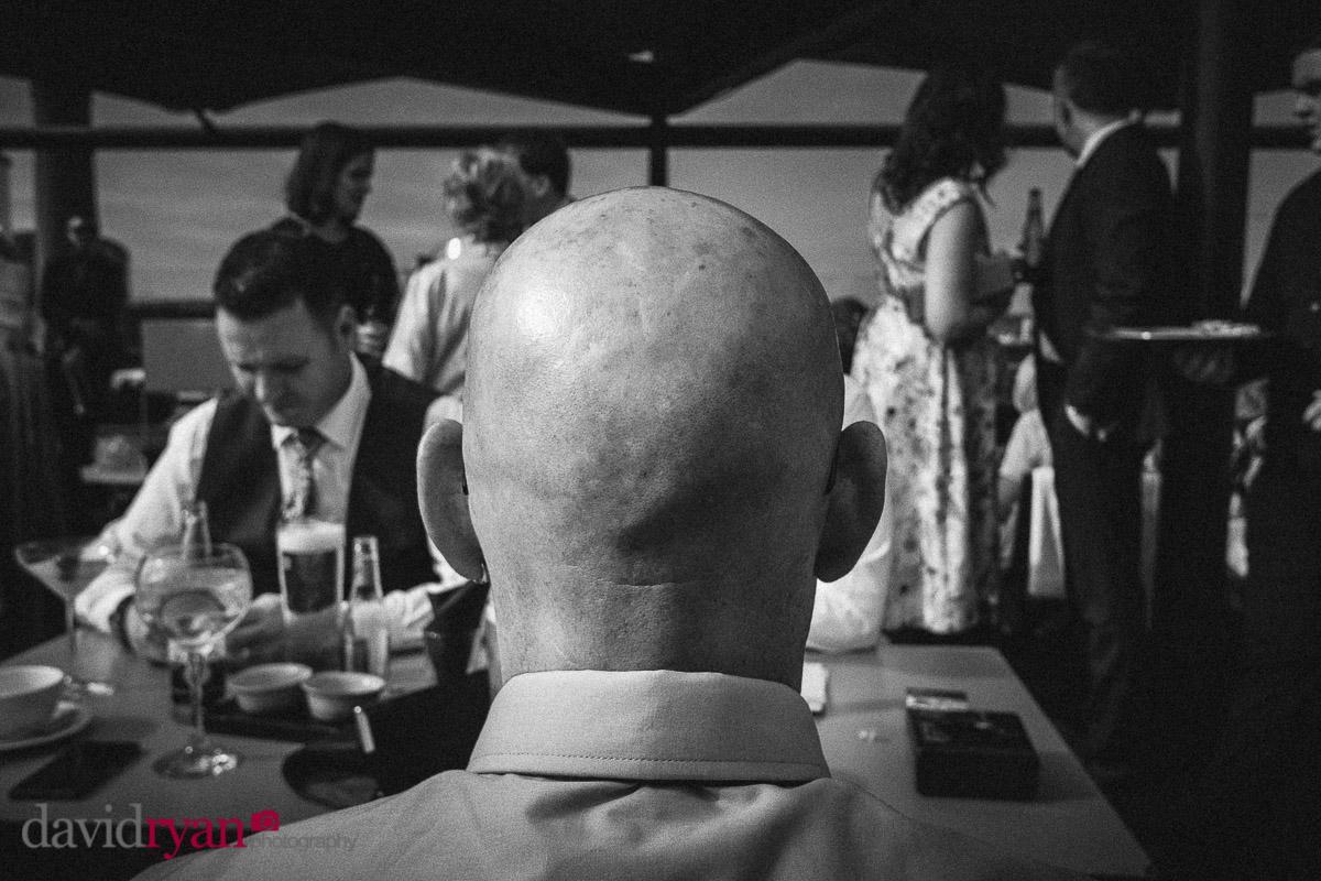 bald mans head